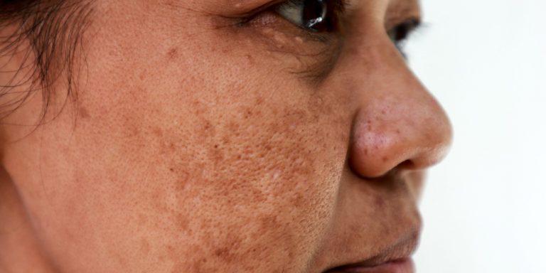 Face Serum for glowing skin