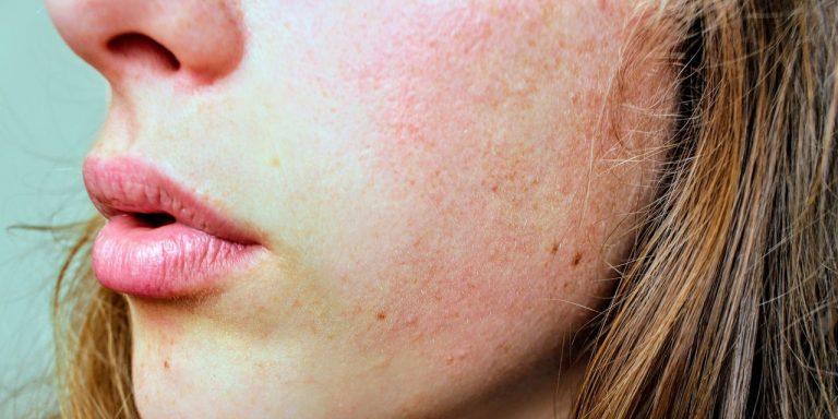 Face Serum for Sensitive Skin